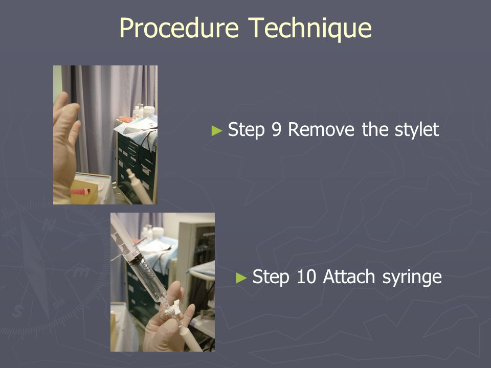 Procedure Technique ► ► Step 9 Remove the stylet ► ► Step 10 Attach syringe