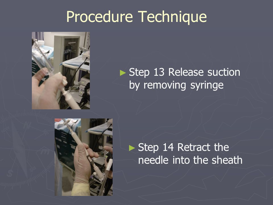 Procedure Technique ► ► Step 13 Release suction by removing syringe ► ► Step 14 Retract the needle into the sheath