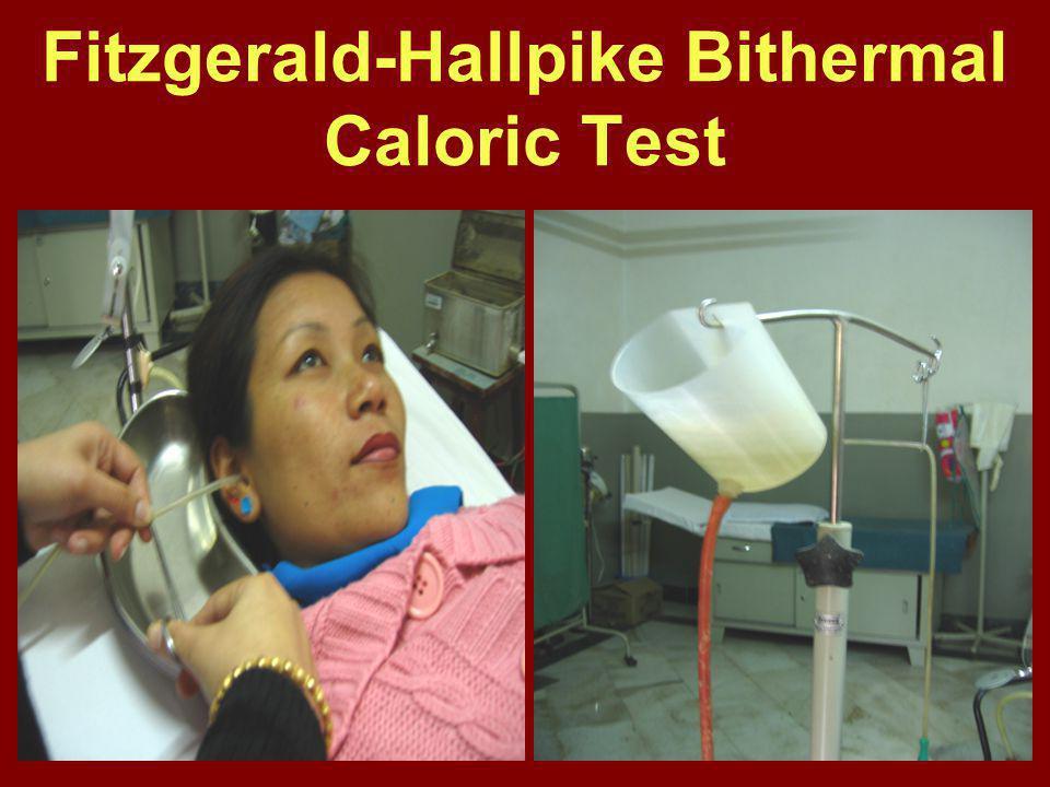 Fitzgerald-Hallpike Bithermal Caloric Test