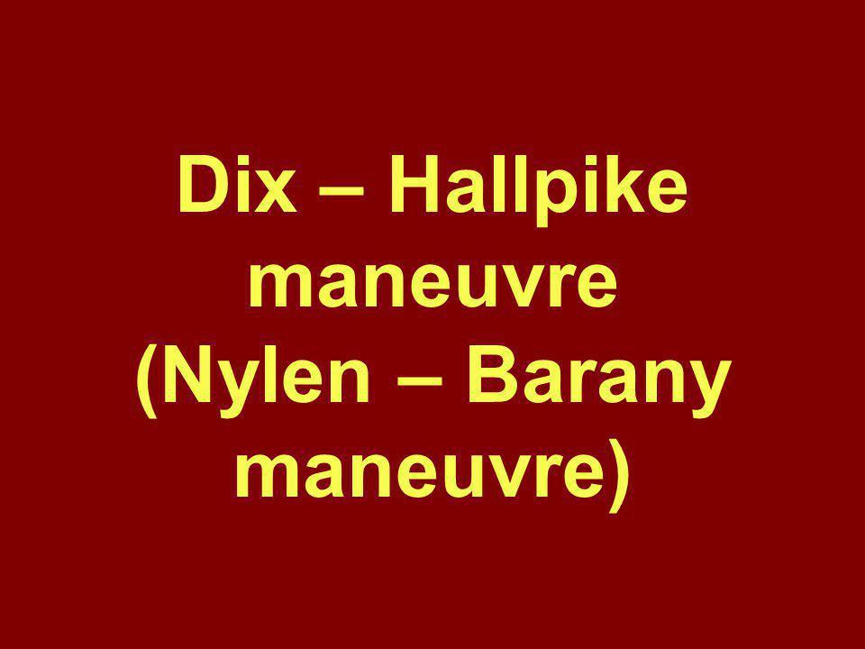 Dix – Hallpike maneuvre (Nylen – Barany maneuvre)