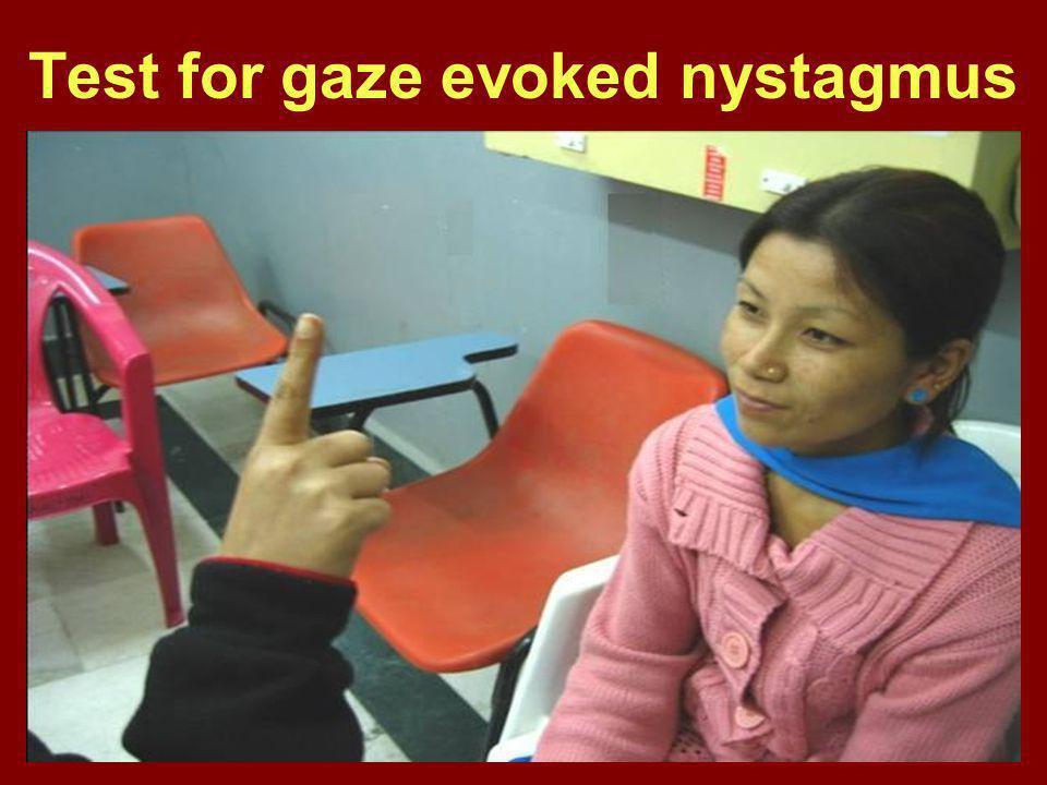 Test for gaze evoked nystagmus