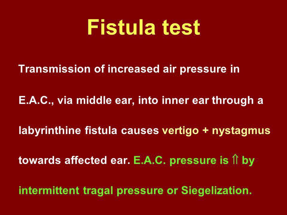 Fistula test Transmission of increased air pressure in E.A.C., via middle ear, into inner ear through a labyrinthine fistula causes vertigo + nystagmu