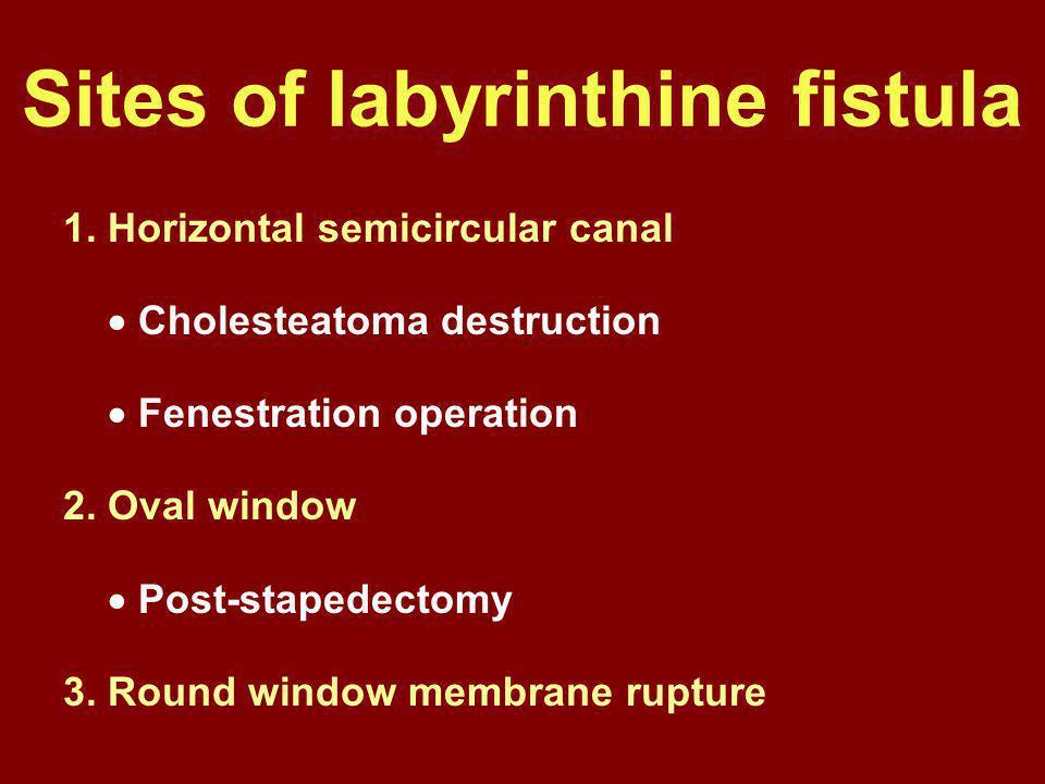 Sites of labyrinthine fistula 1. Horizontal semicircular canal  Cholesteatoma destruction  Fenestration operation 2. Oval window  Post-stapedectomy