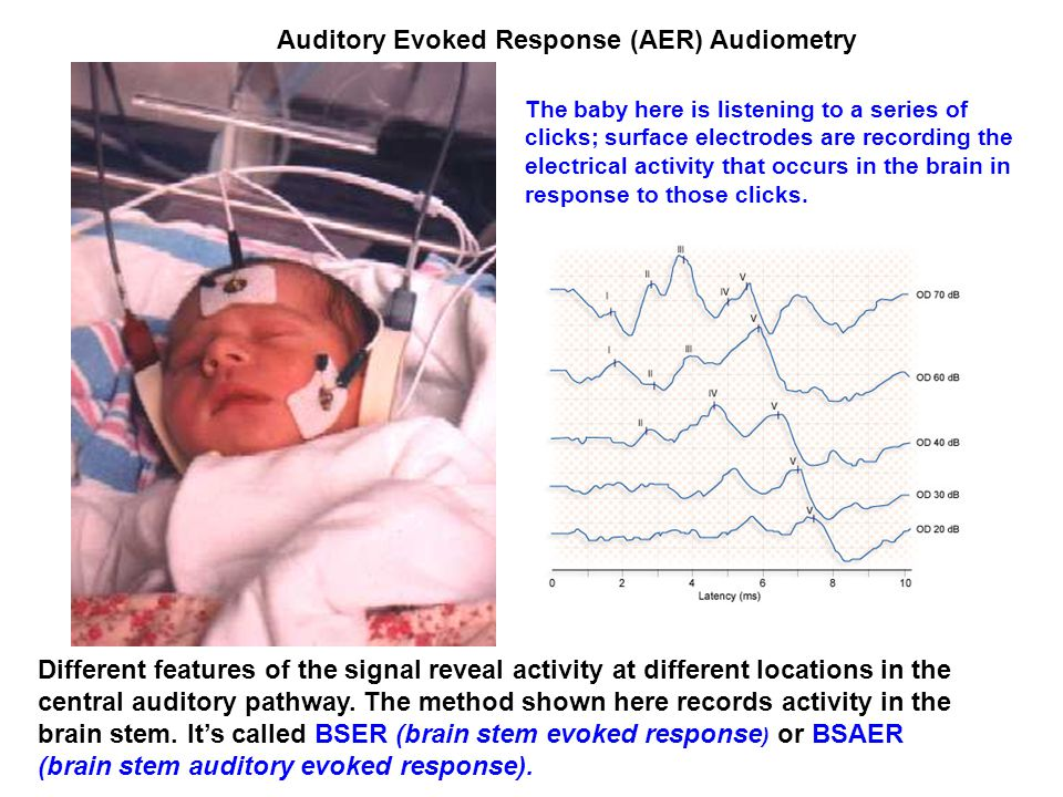 Auditory Evoked Response (AER) Audiometry Different features of the signal reveal activity at different locations in the central auditory pathway.