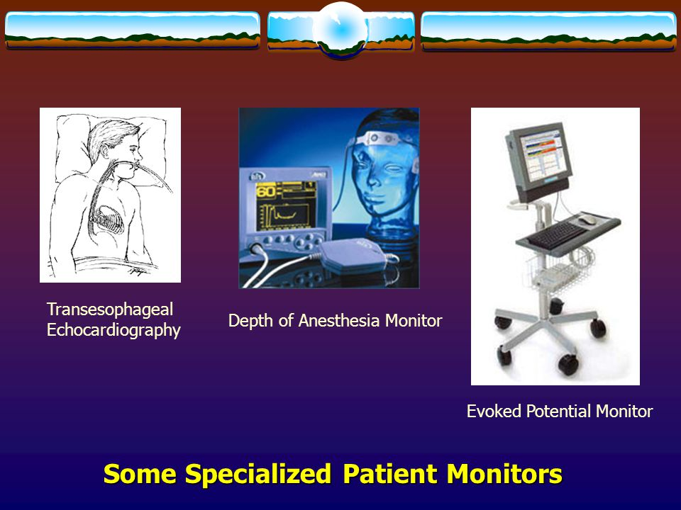 Some Specialized Patient Monitors Depth of Anesthesia Monitor Evoked Potential Monitor Transesophageal Echocardiography