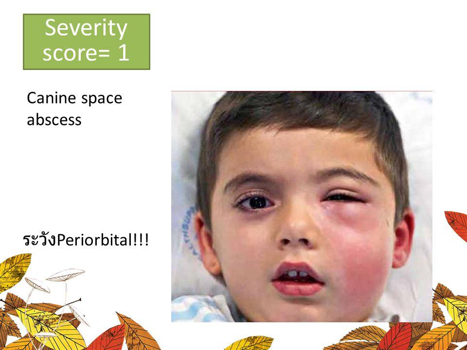 Low severity Canine space abscess Severity score= 1 ระวัง Periorbital!!!