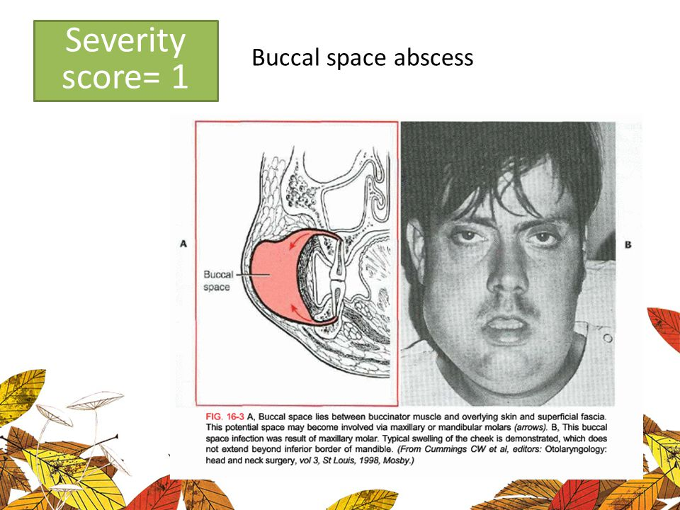 Low severity Buccal space abscess Severity score= 1