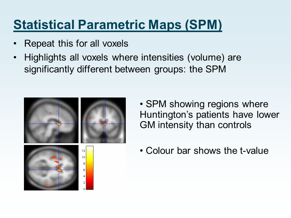 Statistical Parametric Maps (SPM) Repeat this for all voxels Highlights all voxels where intensities (volume) are significantly different between grou