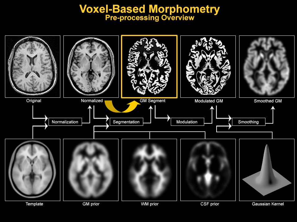 GREY MATTER WHITE MATTER CSF SPATIALLY NORMALISED IMAGE 2.