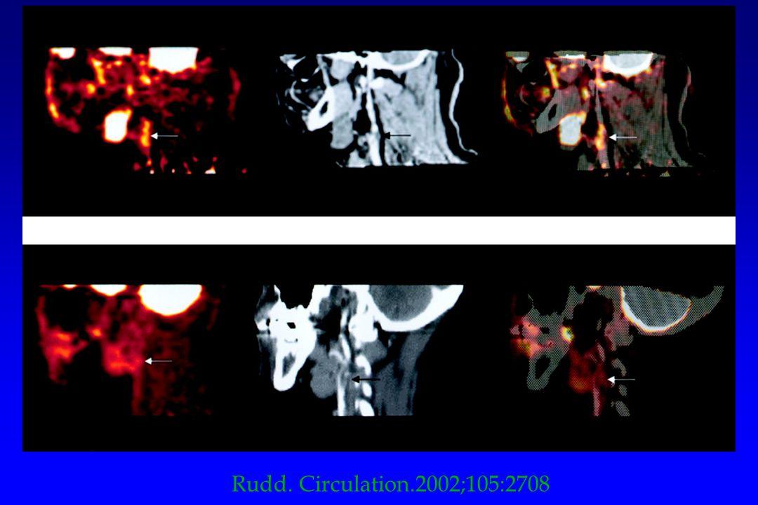 Rudd. Circulation.2002;105:2708