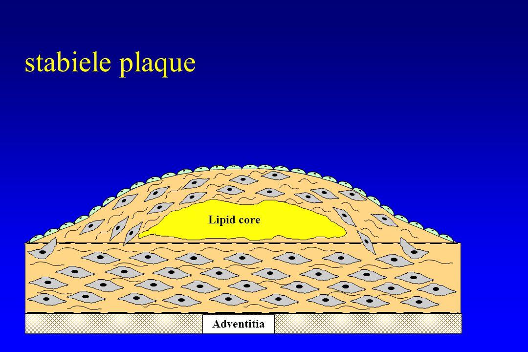 Lipid core Adventitia Thrombus instabiele plaque