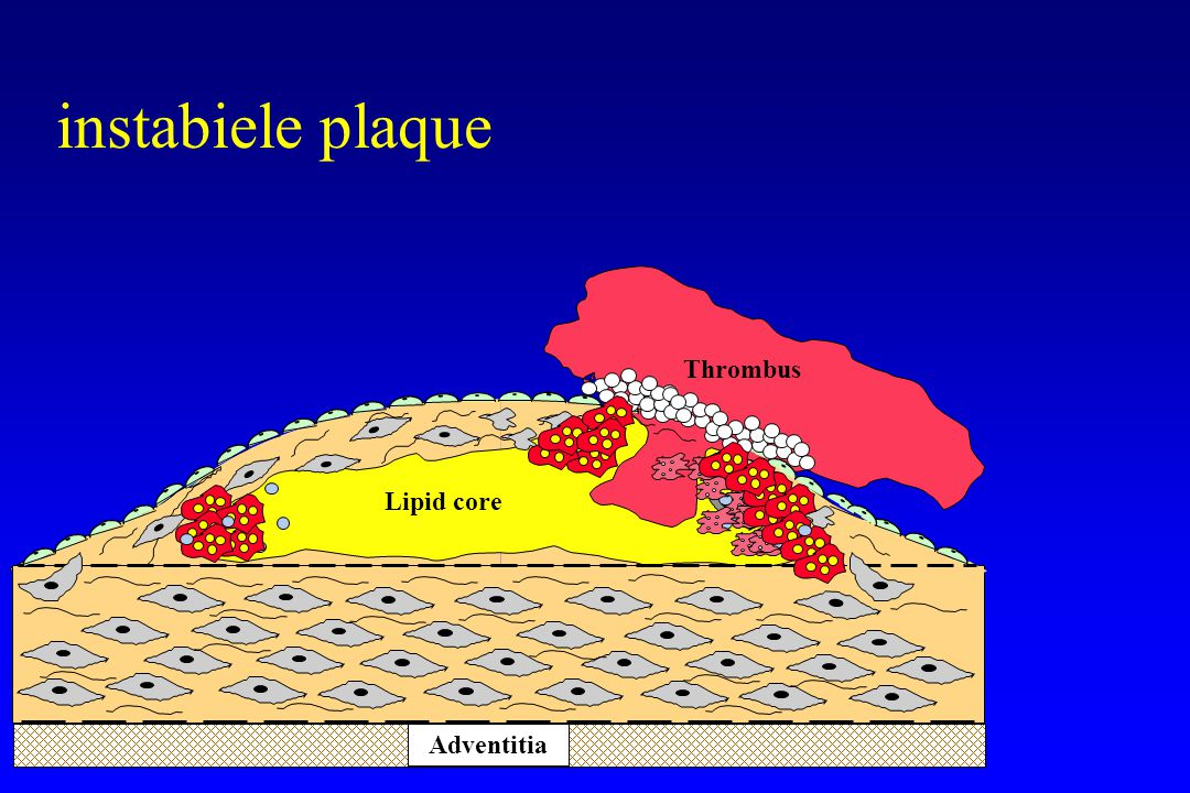 risicofactormodificatie (II) BMI < 25 kg/m 2 en buikomtrek < 102 (88) cm bloeddruk < 140/90 mmhg (<130/85 mmhg) totaal cholesterol < 190 mg/dl (5 mmol/ L) LDL cholesterol < 115 mg/dl (3 mmol/L) diabetes : HbA 1c < 7.5% De Backer.