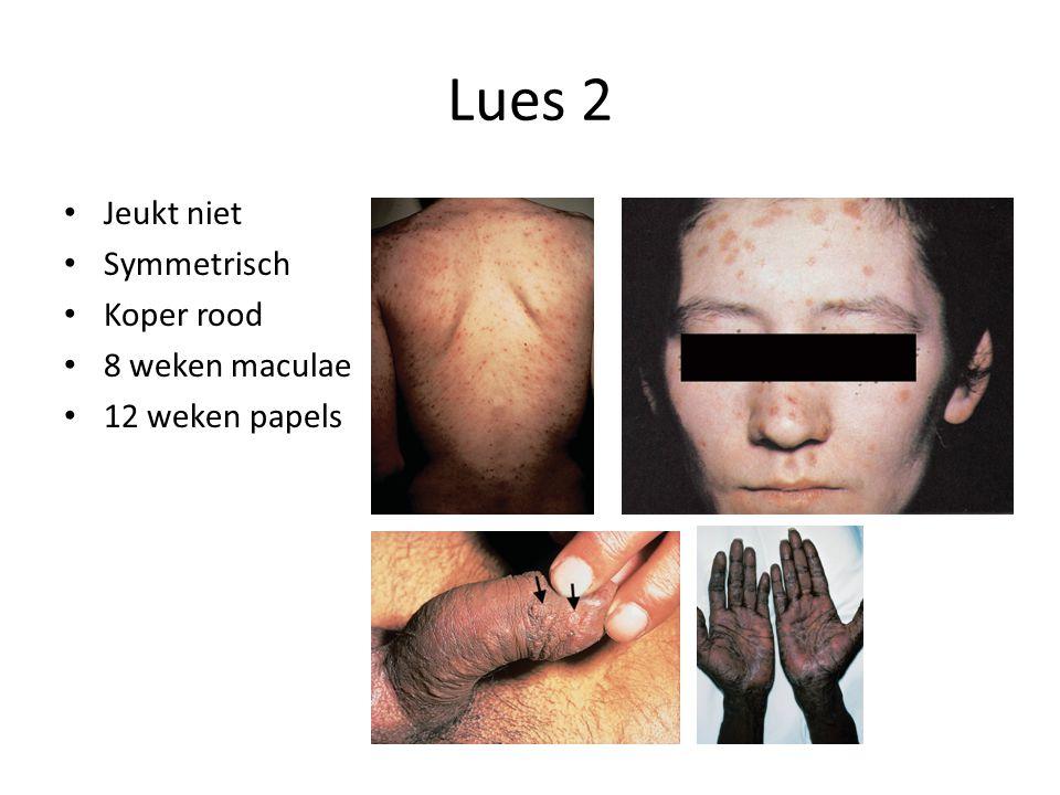 Lues 2 Jeukt niet Symmetrisch Koper rood 8 weken maculae 12 weken papels