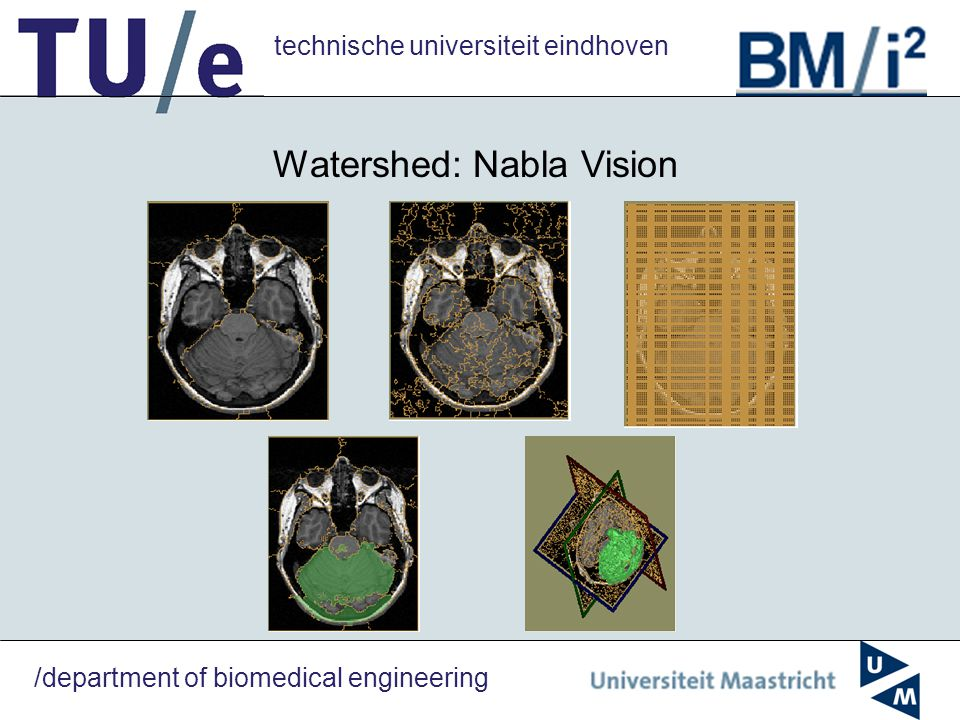 technische universiteit eindhoven /department of biomedical engineering Watershed: Nabla Vision