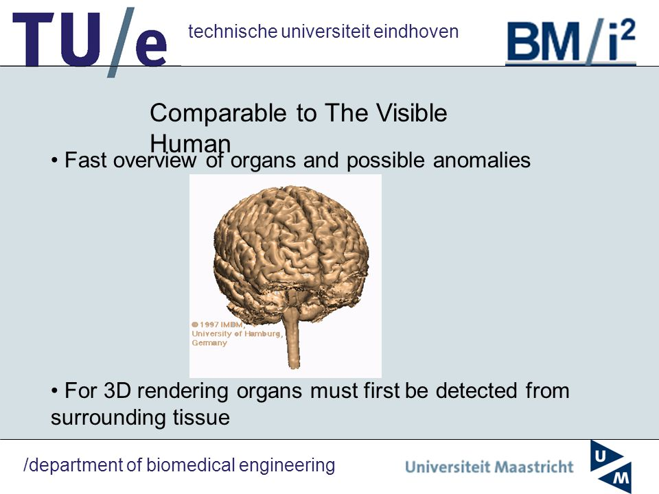 technische universiteit eindhoven /department of biomedical engineering Comparable to The Visible Human Fast overview of organs and possible anomalies For 3D rendering organs must first be detected from surrounding tissue