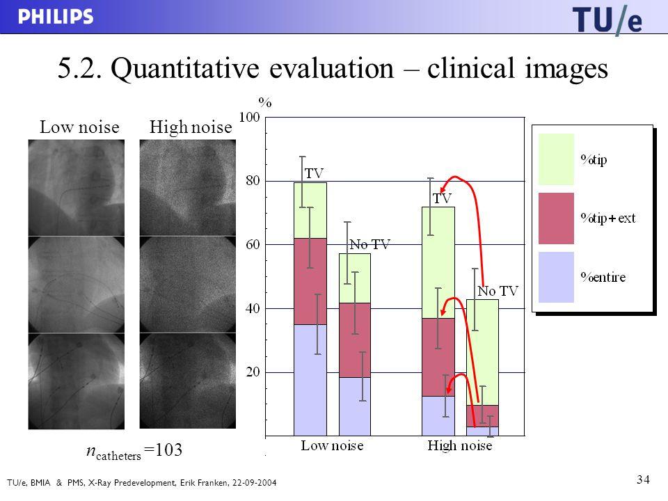 TU/e, BMIA & PMS, X-Ray Predevelopment, Erik Franken, 22-09-2004 34 5.2.