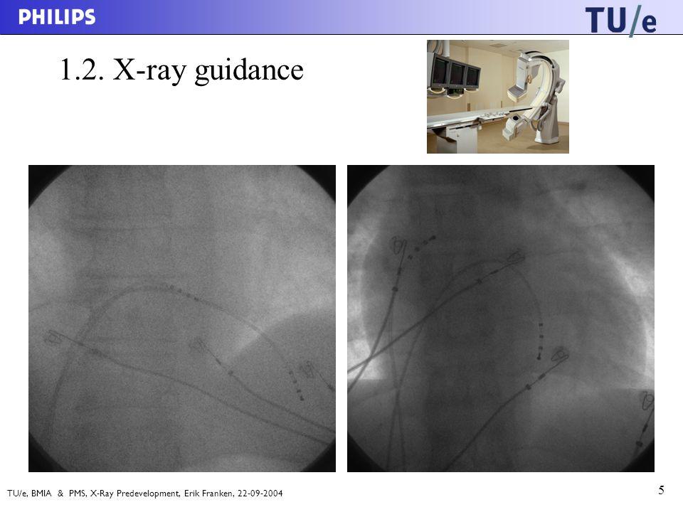 TU/e, BMIA & PMS, X-Ray Predevelopment, Erik Franken, 22-09-2004 5 1.2. X-ray guidance
