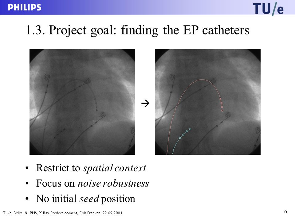 TU/e, BMIA & PMS, X-Ray Predevelopment, Erik Franken, 22-09-2004 6 1.3. Project goal: finding the EP catheters Restrict to spatial context Focus on no