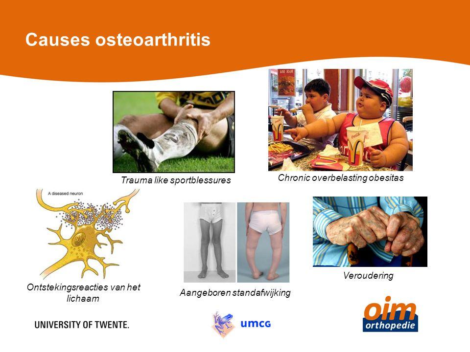 Causes osteoarthritis Veroudering Aangeboren standafwijking Trauma like sportblessures Chronic overbelasting obesitas Ontstekingsreacties van het lichaam