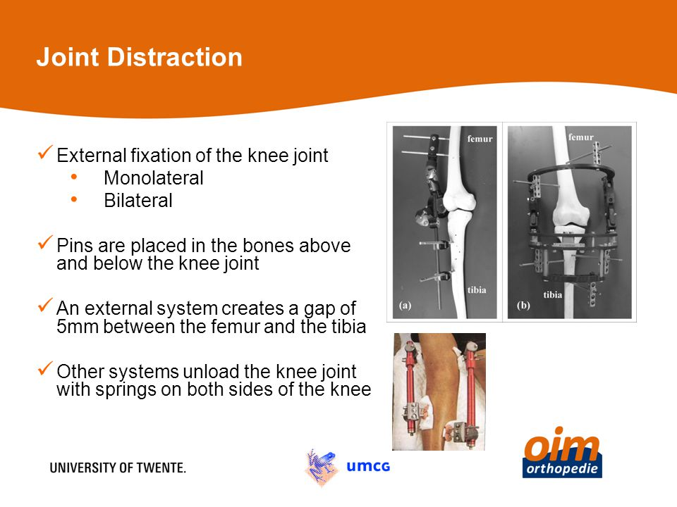 Joint Distraction External fixation of the knee joint Monolateral Bilateral Pins are placed in the bones above and below the knee joint An external sy