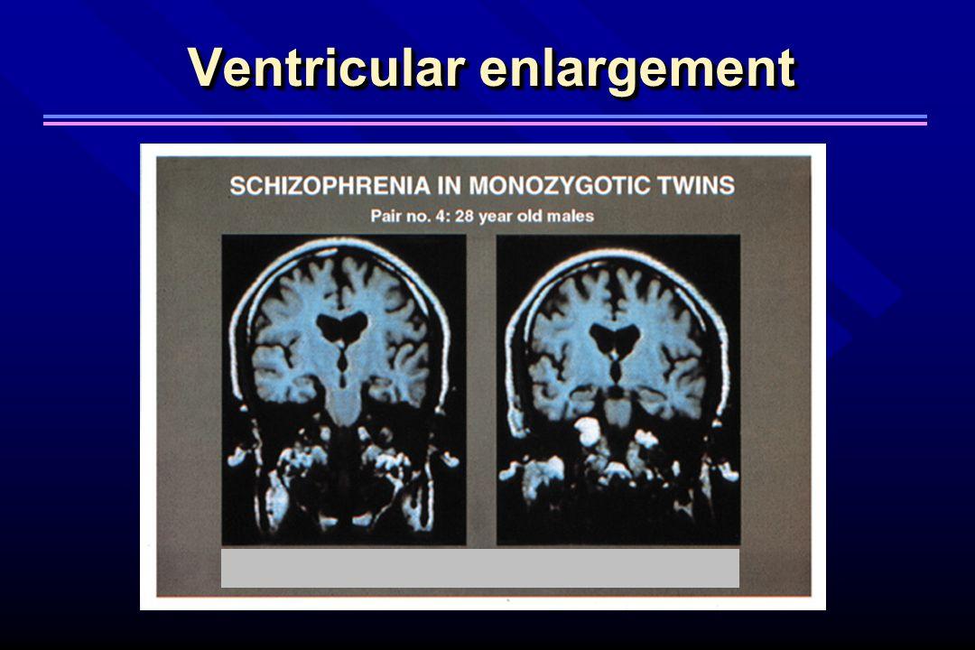Ventricular enlargement