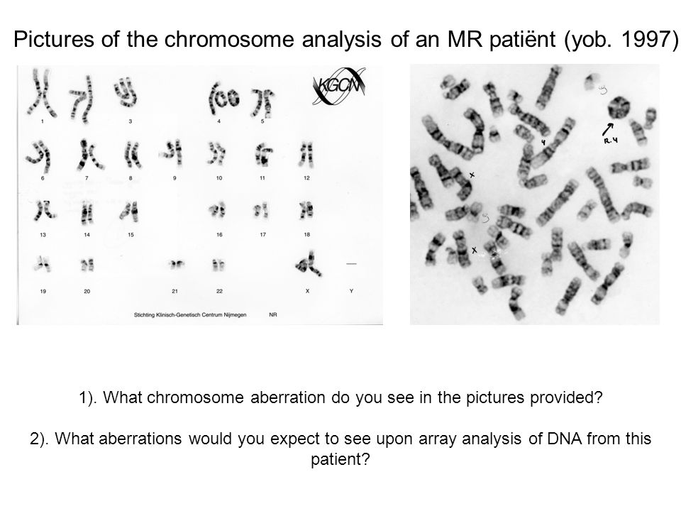 Pictures of the chromosome analysis of an MR patiënt (yob.