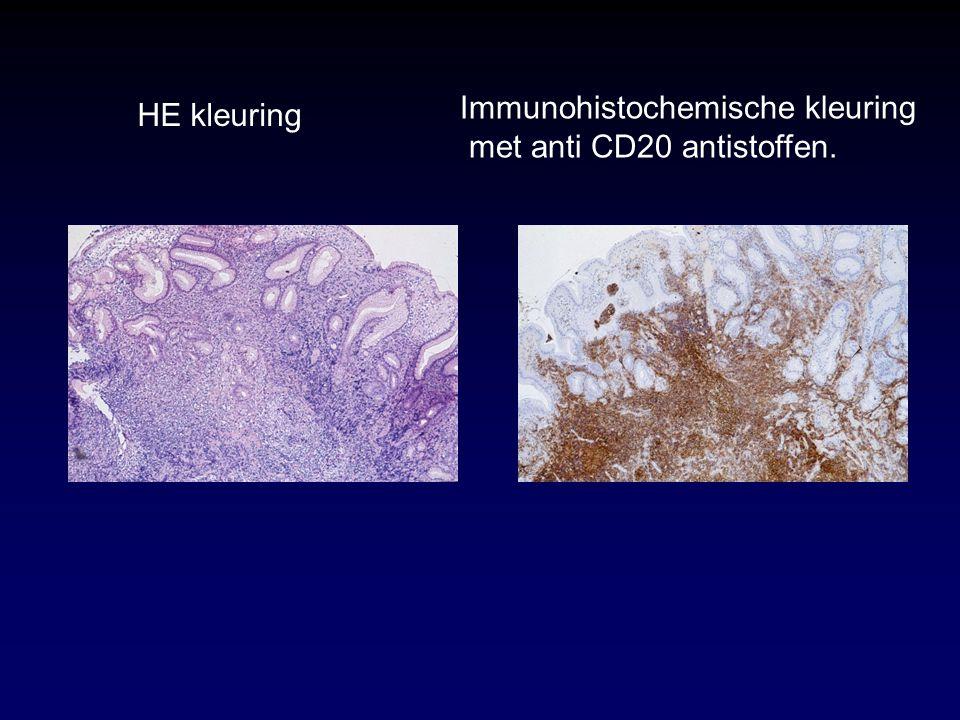 Immunohistochemische kleuring met anti CD20 antistoffen. HE kleuring