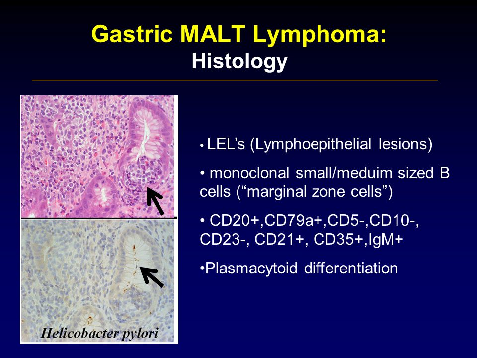Gastric MALT Lymphoma: Histology LEL's (Lymphoepithelial lesions) monoclonal small/meduim sized B cells ( marginal zone cells ) CD20+,CD79a+,CD5-,CD10-, CD23-, CD21+, CD35+,IgM+ Plasmacytoid differentiation