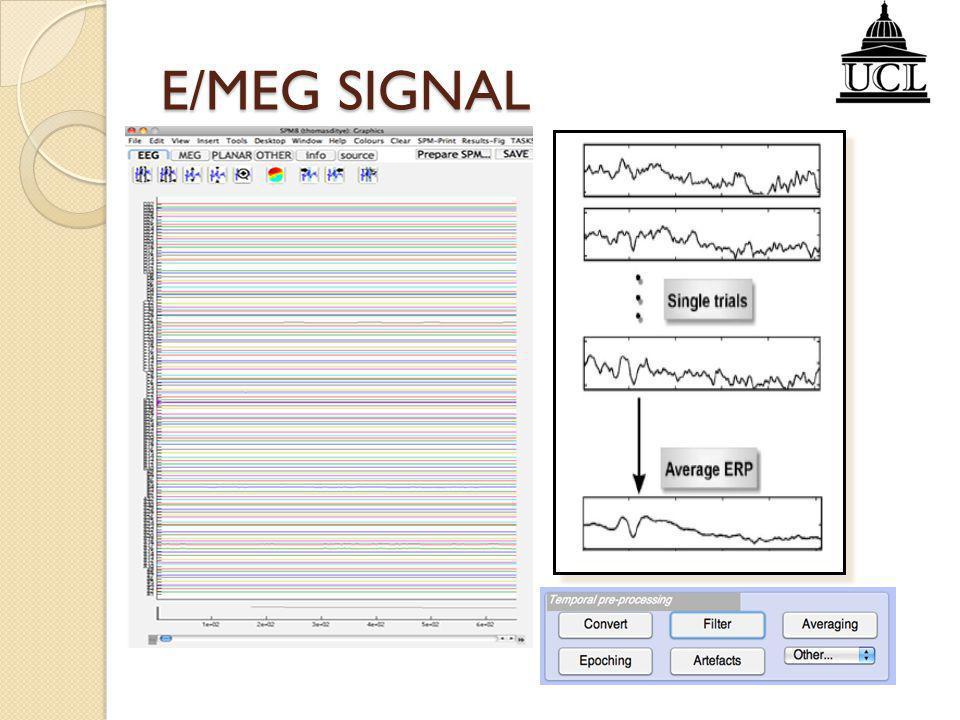 Statistical Analysis Source Reconstruction E/MEG SIGNAL