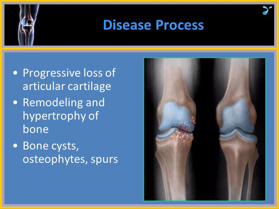 Osteoarthritis Introduction Risk Factors Physiology Treatment