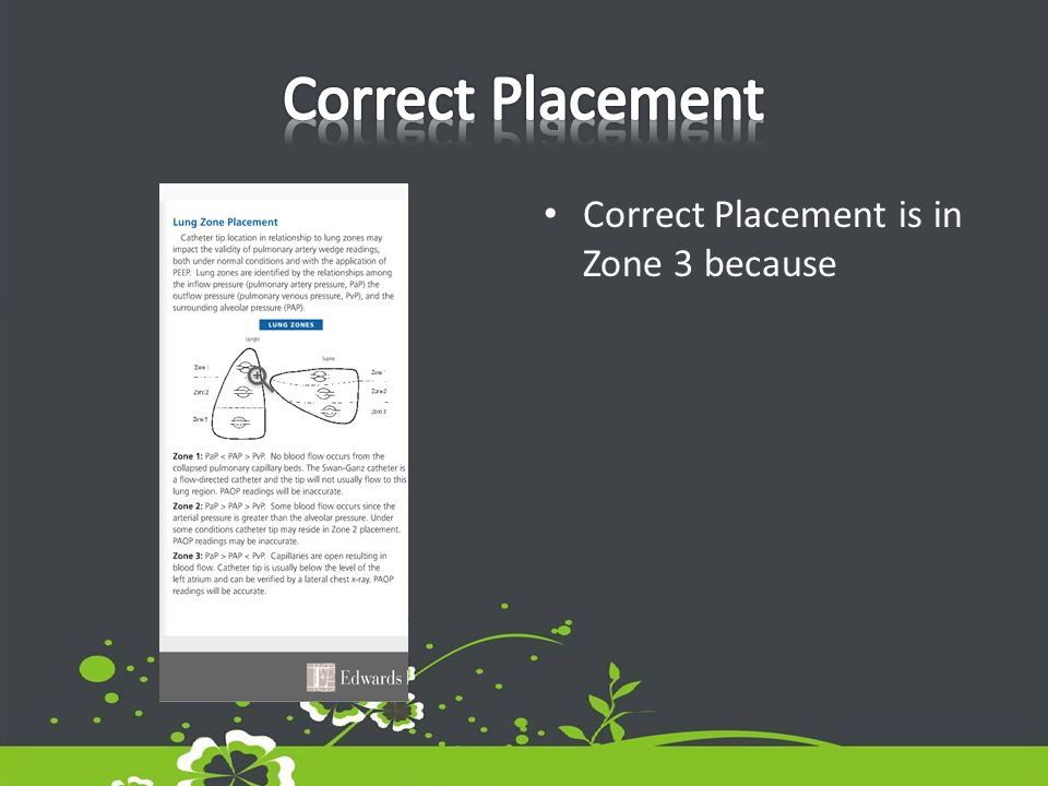 Correct Placement is in Zone 3 because