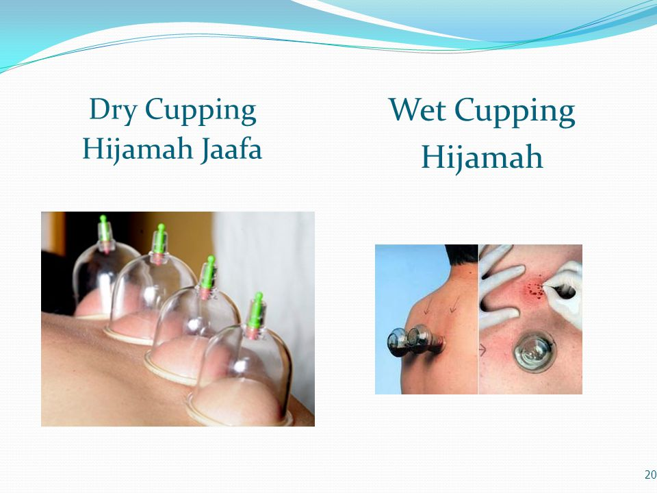 Dry Cupping Hijamah Jaafa Wet Cupping Hijamah 20
