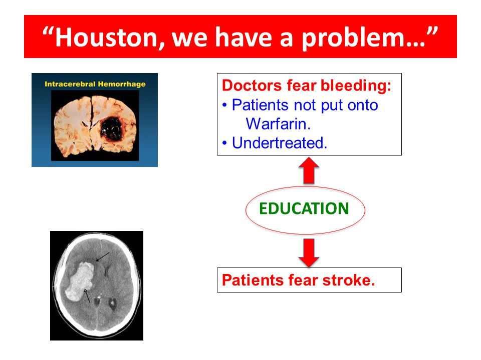"Doctors fear bleeding: Patients not put onto Warfarin. Undertreated. Patients fear stroke. ""Houston, we have a problem…"" EDUCATION"