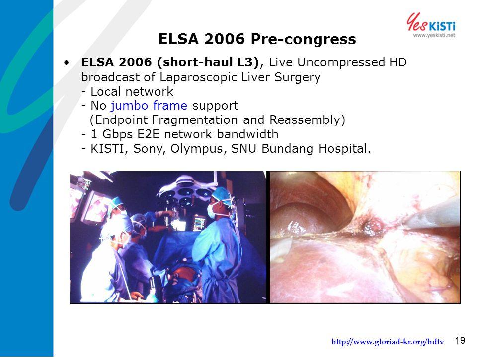 http://www.gloriad-kr.org/hdtv 19 ELSA 2006 Pre-congress ELSA 2006 (short-haul L3), Live Uncompressed HD broadcast of Laparoscopic Liver Surgery - Local network - No jumbo frame support (Endpoint Fragmentation and Reassembly) - 1 Gbps E2E network bandwidth - KISTI, Sony, Olympus, SNU Bundang Hospital.