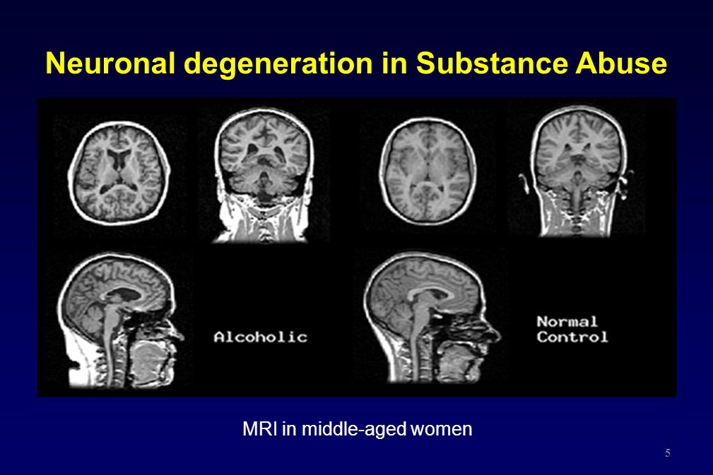 MRI in middle-aged women Neuronal degeneration in Substance Abuse 5