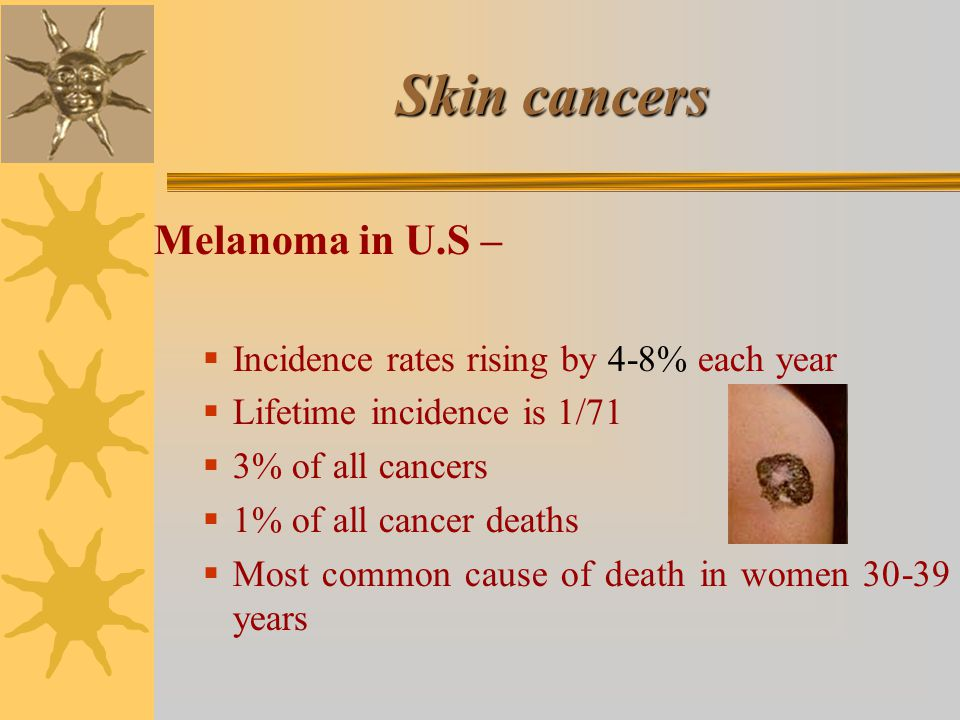 Skin cancers Melanoma in U.S –  Incidence rates rising by 4-8% each year  Lifetime incidence is 1/71  3% of all cancers  1% of all cancer deaths  Most common cause of death in women 30-39 years