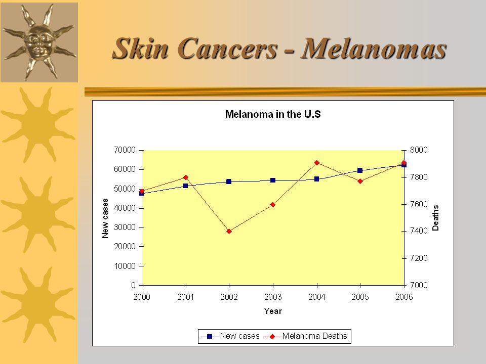 Skin Cancers - Melanomas