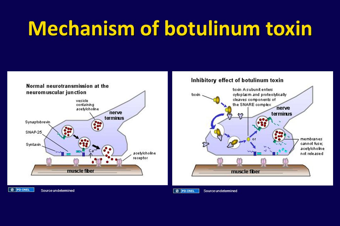 Mechanism of botulinum toxin Source undetermined