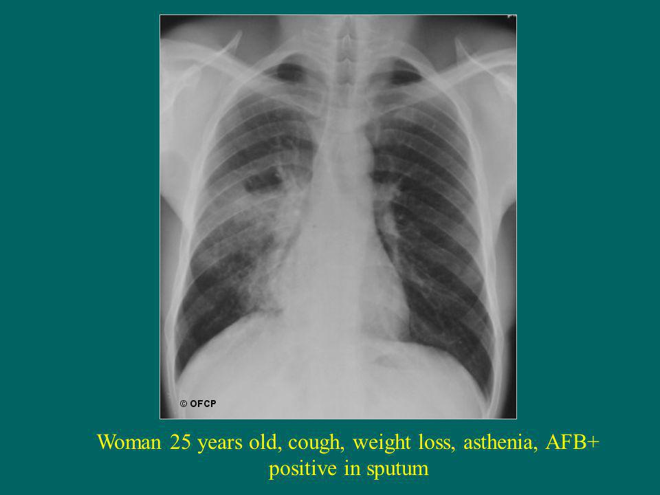 Woman 25 years old, cough, weight loss, asthenia, AFB+ positive in sputum