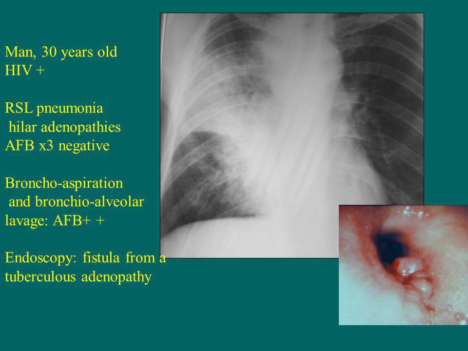 Man, 30 years old HIV + RSL pneumonia hilar adenopathies AFB x3 negative Broncho-aspiration and bronchio-alveolar lavage: AFB+ + Endoscopy: fistula from a tuberculous adenopathy