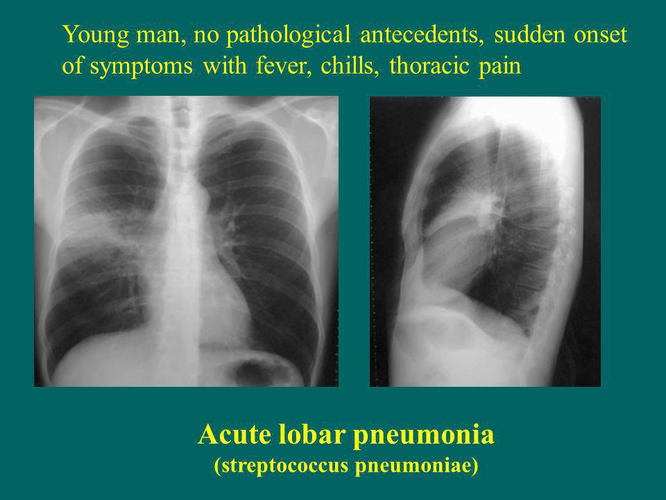 Young man, no pathological antecedents, sudden onset of symptoms with fever, chills, thoracic pain Acute lobar pneumonia (streptococcus pneumoniae)