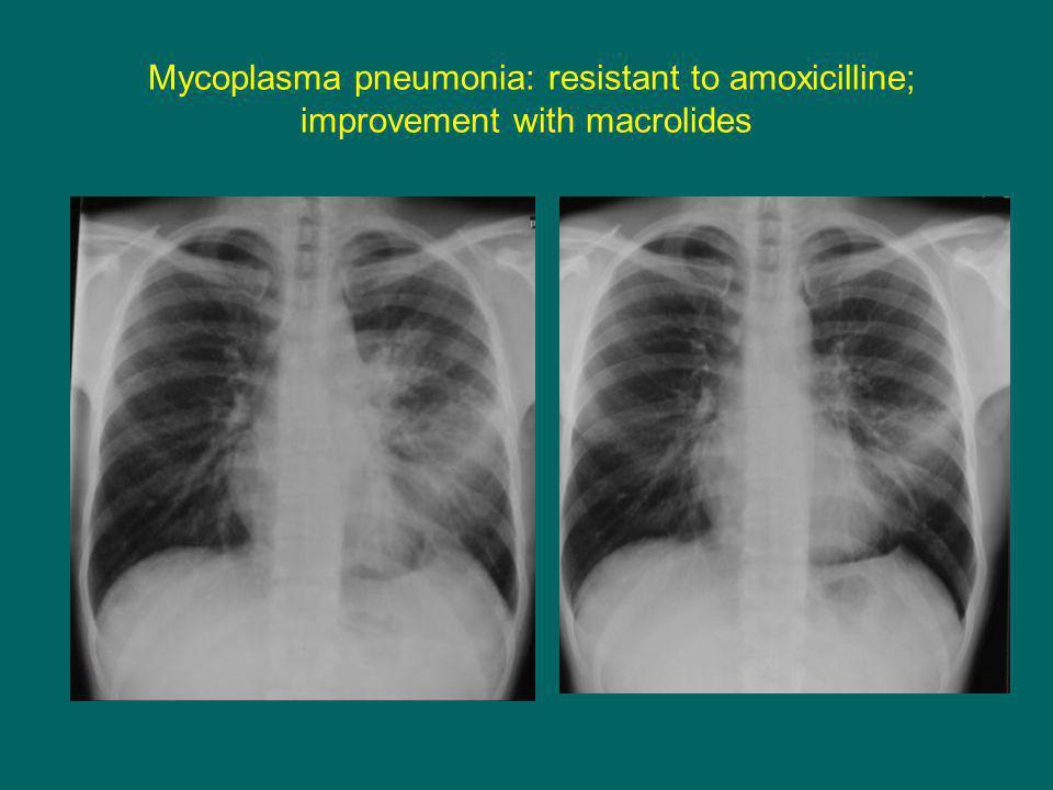 Mycoplasma pneumonia: resistant to amoxicilline; improvement with macrolides