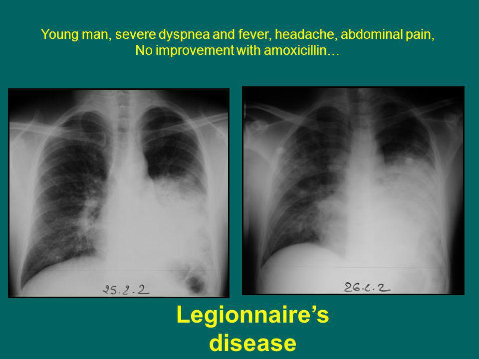 Legionnaire's disease Young man, severe dyspnea and fever, headache, abdominal pain, No improvement with amoxicillin…