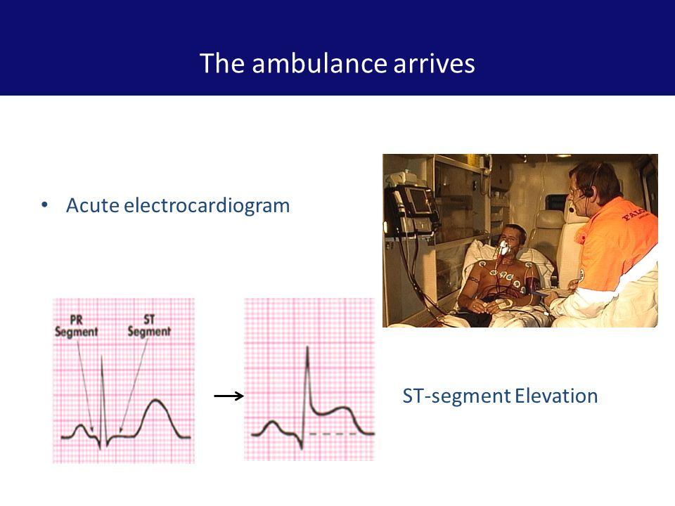 Call Ambulance 1) Transmission of electrocardiogram from ambulance to STEMI centre (hospital) 2) Hospital doctor makes the STEMI diagnosis and directs the ambulance to the STEMI centre.