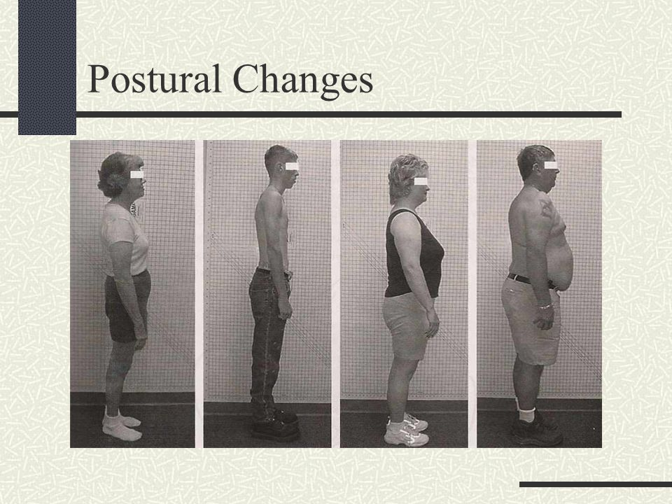 Effects of Poor Posture on Muscles Overstressed muscles tighten.