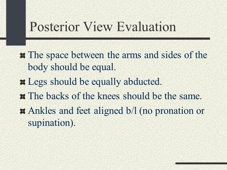 Posterior View Evaluation Structures that should be level and equal.