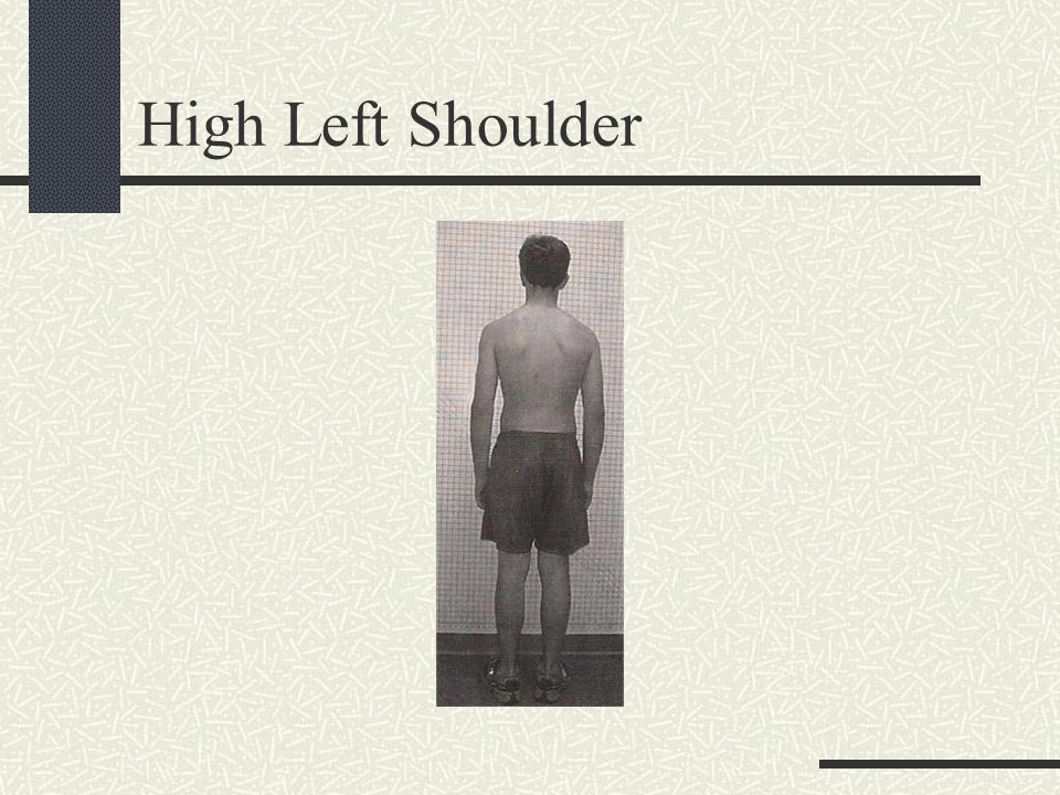 Right Head Tilt and Rotation