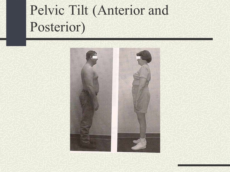 Anteroposterior / Front View Balanced posture should appear equal from left to right.