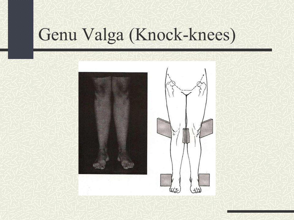 Genu Vara (Bowlegs)