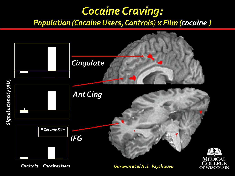 Cocaine Film Cocaine Craving: Population (Cocaine Users, Controls) x Film (cocaine ) Garavan et al A.J. Psych 2000 IFG Ant Cing Cingulate Signal Inten